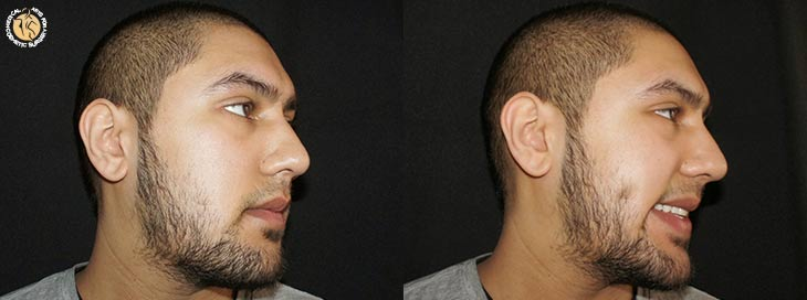 dimple-creation-male-01-sideview-r