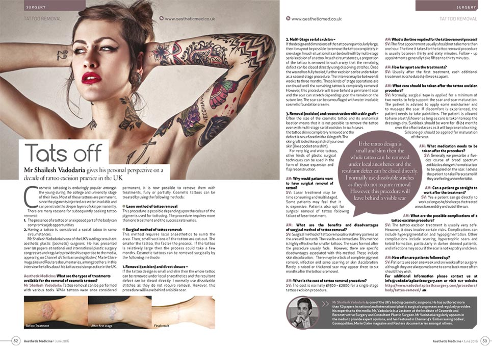 tattoo-removal-article