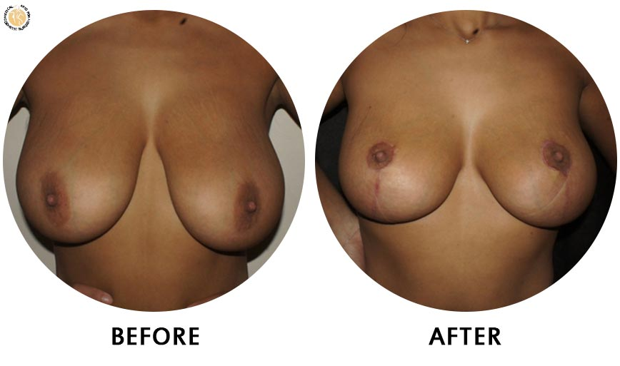 breast-augmentation-before-after-01-front
