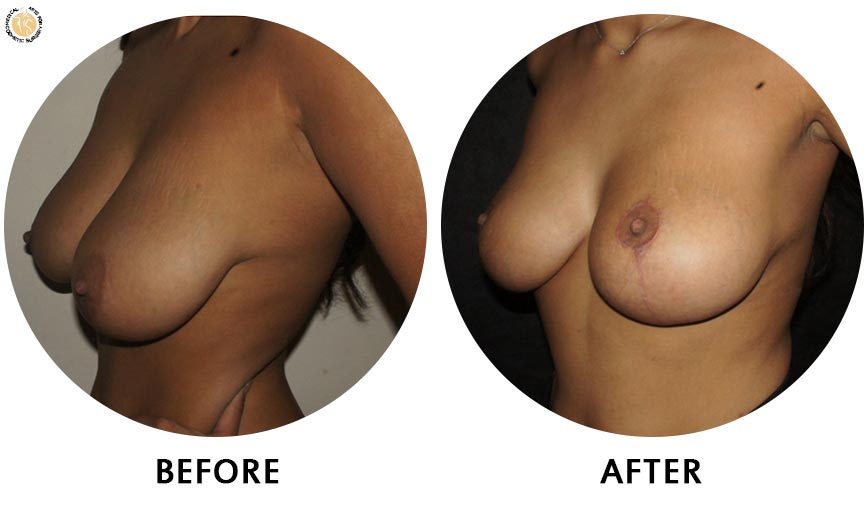 breast-augmentation-before-after-01-left-o