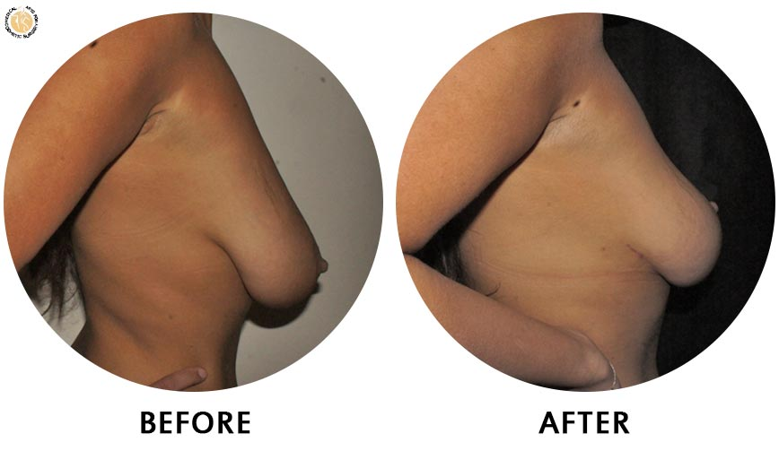 breast-augmentation-before-after-01-right