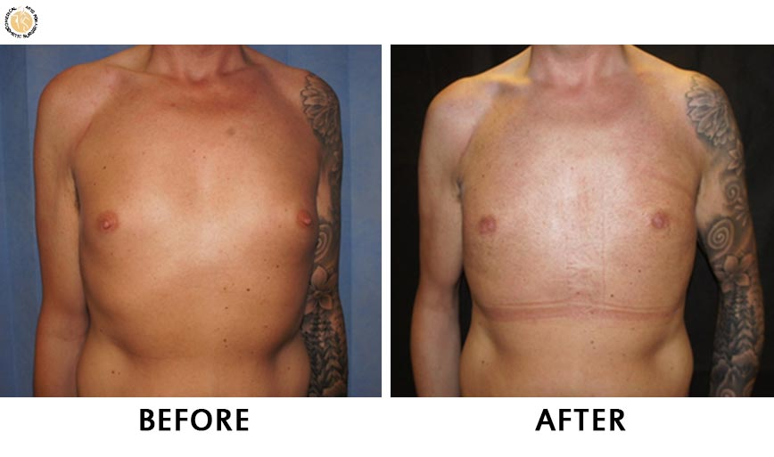 gynaecomastia-before-after-patient-1-front