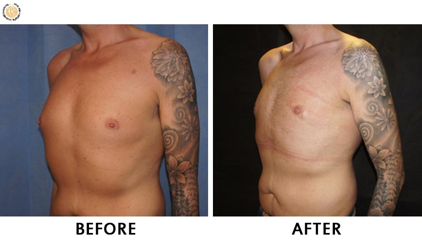 gynaecomastia-before-after-patient-1-left-o