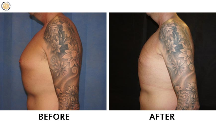 gynaecomastia-before-after-patient-1-left
