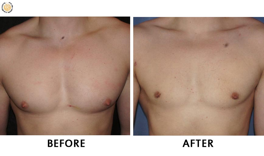 gynaecomastia-before-after-patient-2-front