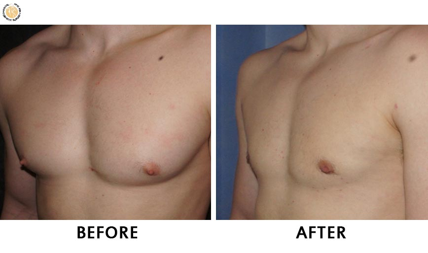 gynaecomastia-before-after-patient-2-left-ob