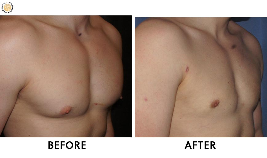 gynaecomastia-before-after-patient-2-right-ob