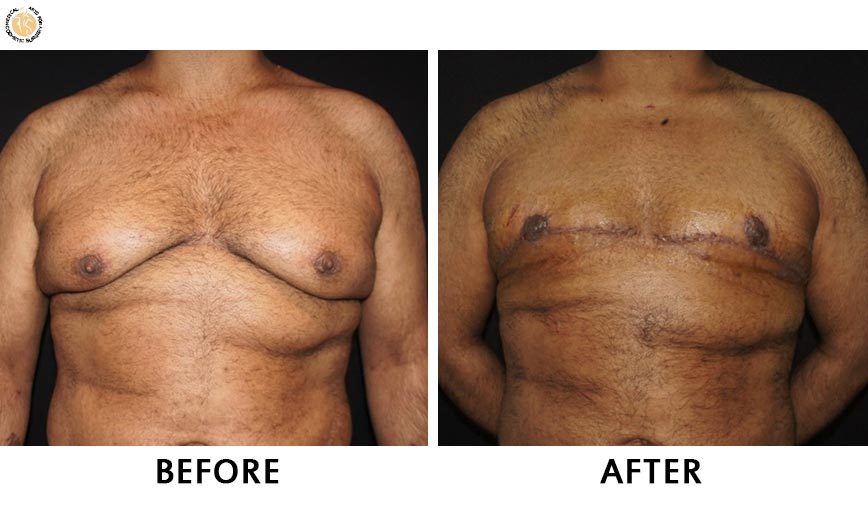 gynaecomastia-before-after-patient-3-front