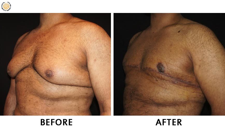 gynaecomastia-before-after-patient-3-right-ob