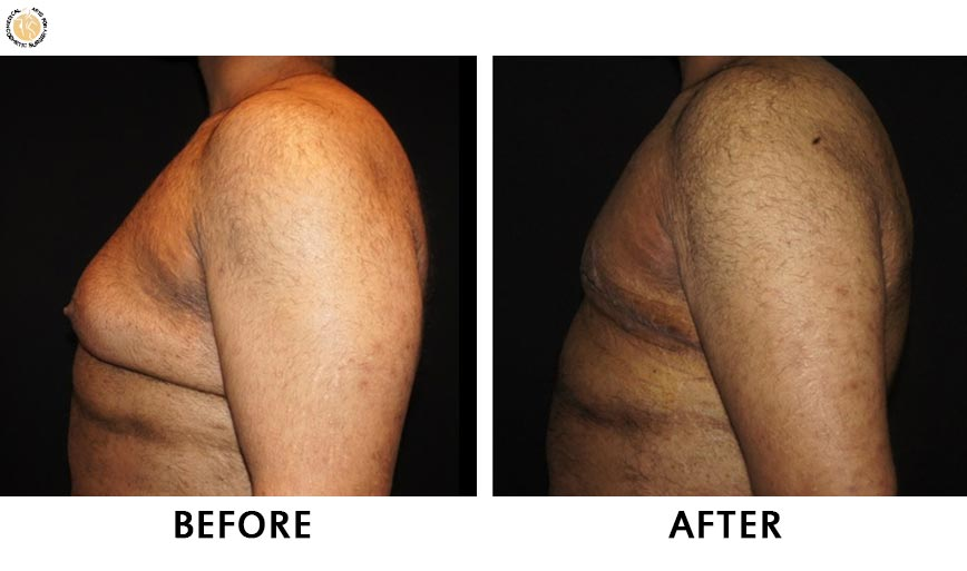gynaecomastia-before-after-patient-3-right