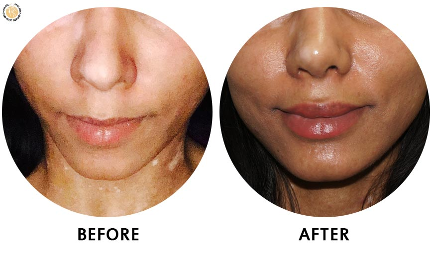 lip-enhancement-before-after-01-front