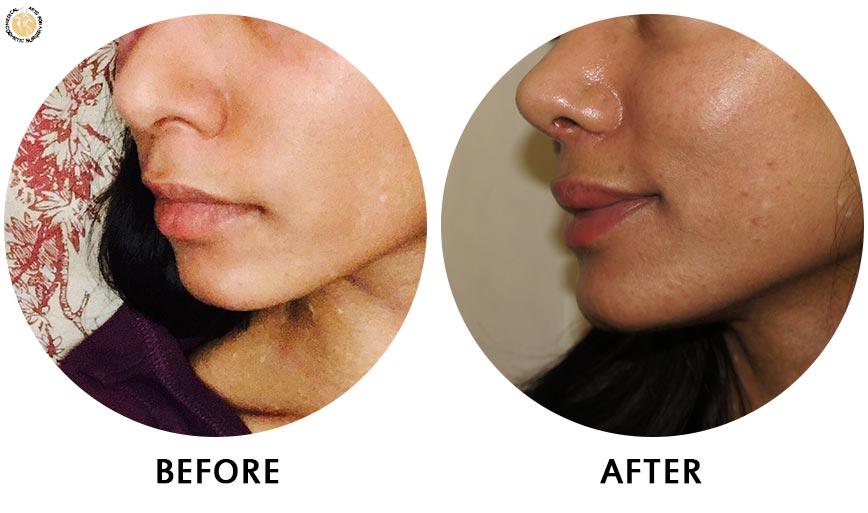lip-enhancement-before-after-01-left