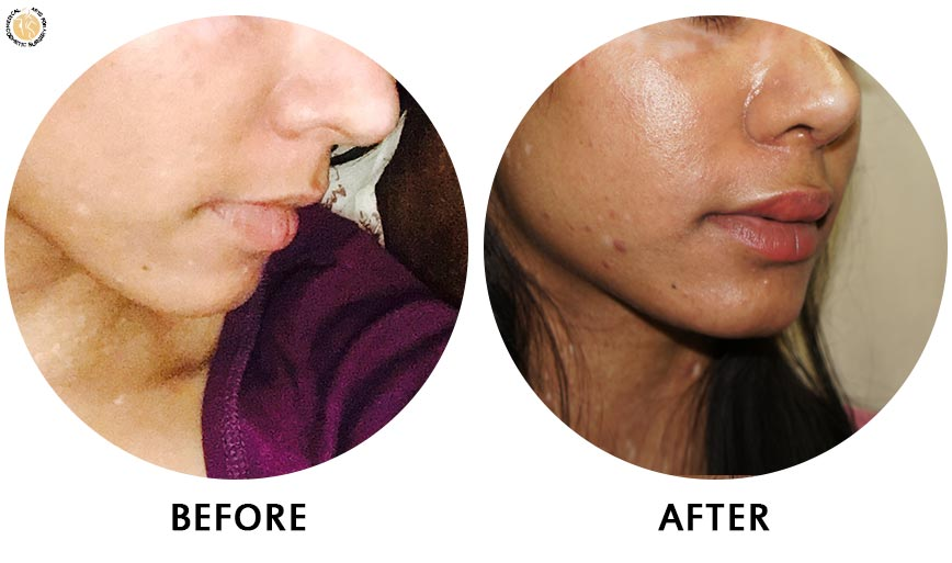 lip-enhancement-before-after-01-right