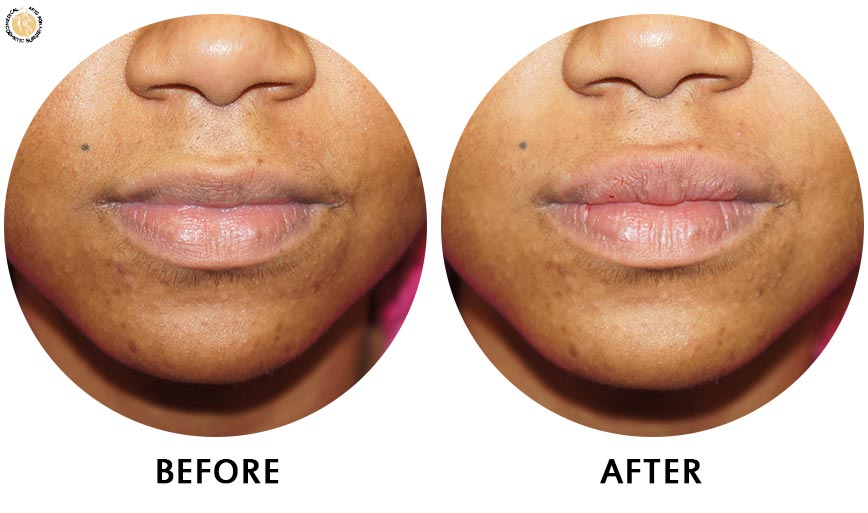 lip-enhancement-before-after-02-front