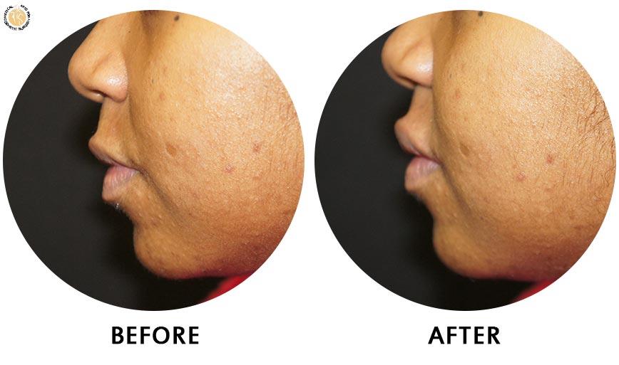 lip-enhancement-before-after-02-left