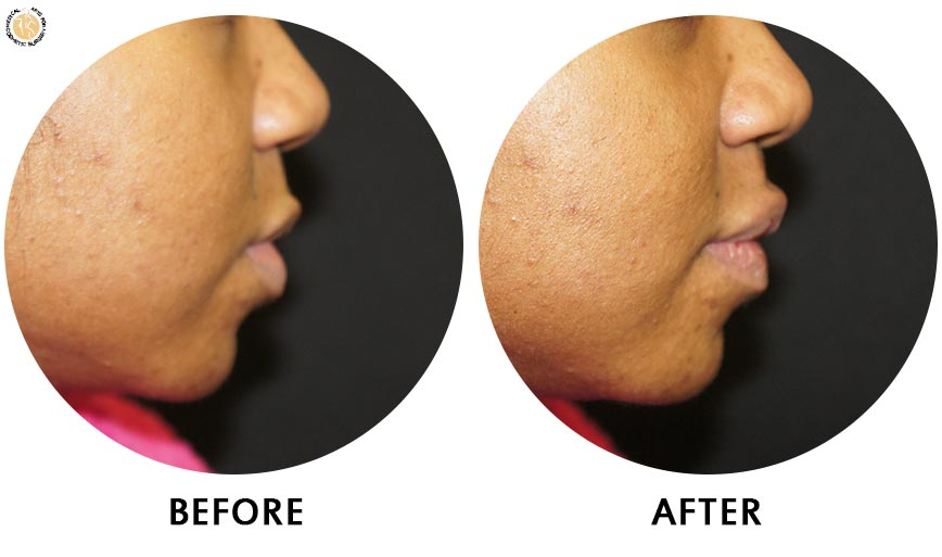 lip-enhancement-before-after-02-right