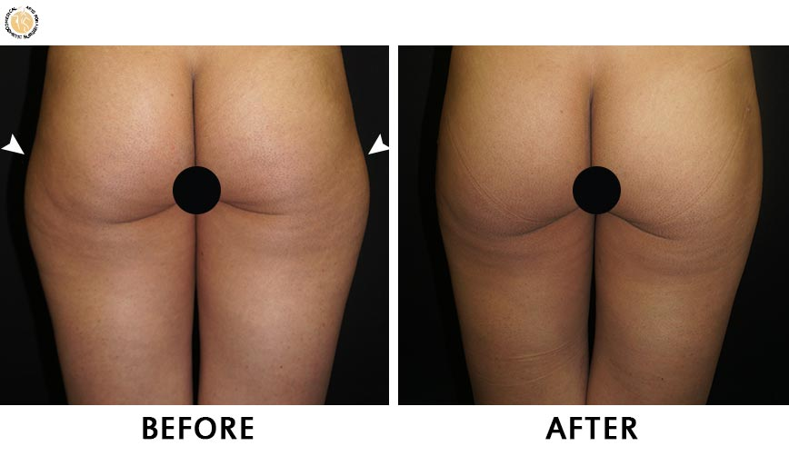 liposuction-patient-before-after-01