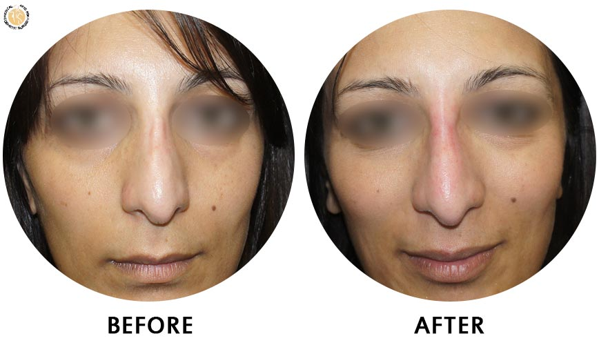non-surgical-rhinoplasty-before-after-1