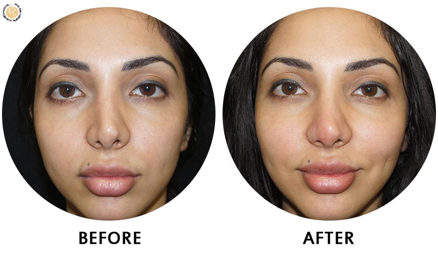 non-surgical-rhinoplasty-before-after-2