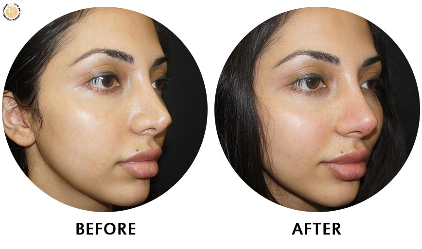 non-surgical-rhinoplasty-before-after-ob-2